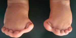 A rather extreme version of syndactyly. www.jisppd.com PMID: 21273726